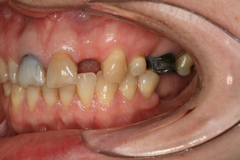 hambaimplantaadi paigaldamine