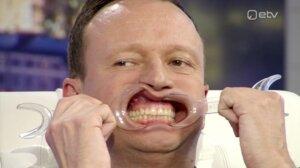 Marko Reikop istub hambaarstitooli, sest hammaste tervise kuu on sel aastal pühendatud hirmude leevendamisele. Hambaarsti kartusest räägib doktor Laura Kullamaa